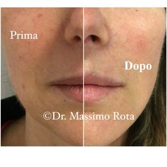 """Liquid Lifting "" with Hyaluronic Filler . Before and after treatment"