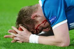 Zenit's Tomas Hubocan suffers gruesome injury during Champions League exit against Borussia Dortmund..