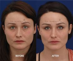 Facial fillers before and after photos cheek fillers under eye filler upper eyelid filler Cheek Fillers, Facial Fillers, Eyelid Lift, Brow Lift, Facelift Before And After, Liquid Facelift, Under Eye Fillers, Non Surgical Facelift, Facial Rejuvenation