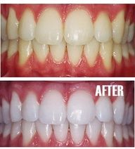 Put a tiny bit of toothpaste into a small cup, mix in one teaspoon baking soda plus one teaspoon of hydrogen peroxide, and half a teaspoon water. Thoroughly mix then brush your teeth for two minutes. Remember to do it once a week until you have reached the results you want. Once your teeth are good and white, limit yourself to using the whitening treatment once every month or two.