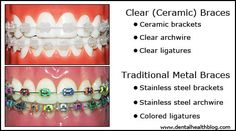 clear braces and traditional metal braces - clary beauty tips - Ceremic Perfect Smile, Beautiful Smile, Better Braces, Ceramic Braces, Preventive Dentistry, Getting Braces, Braces Colors, Brace Face, Teeth Care