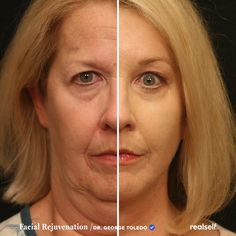 This facial rejuvenation combo included a facelift, forehead lift, eyelid surgery, and dermabrasion. Find out who makes a good candidate for a facelift. Lip Surgery, Eyelid Surgery, Acne Treatment, Body Treatments, Timewise Repair, Liquid Facelift, Botox Brow Lift, Forehead Lift, Maquillaje