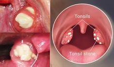 4 Effective Ways to Remove Tonsil Stones without Surgery ! Do you know what those white spots on your tonsils are? They are kno. Chronic Sore Throat, Strep Throat, Tonsilitis Remedy, How To Get Rid, How To Remove, Tonsil Stones, Bad Breath, Mouthwash, Oral Hygiene