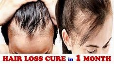 Latest hair loss on a tight budget? you can save money and your hair, hair loss remedy for me… Spätester. Hair Regrowth Shampoo, Natural Hair Regrowth, Make Hair Grow Faster, How To Make Hair, Thicken Hair Naturally, Hair Loss Causes, Regrow Hair, Hair Loss Remedies, Hair Growth Oil