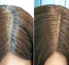 DIY Hair Thickening Treatment For Extra Strong and Long Hair DIY Hair Thickening Treatment For Extra Grey Hair Root Touch Up, Grey Hair Roots, Grey Hair Causes, Hair Thickening Treatment, Covering Gray Hair, Transition To Gray Hair, Ombré Hair, Natural Hair Styles, Long Hair Styles
