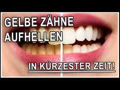 Weiße Zähne bekommen in 5 Minuten mit Hausmittel | Gelbe Zähne selber aufhellen : Ich habe für euch einen weiteren einfachen Tipp wie ihr Euch zuhause ganz einfach die Zähne aufhellen könnt! Alles was ihr dafür braucht ist Aktivkohle, die ihr in der Apotheke oder in der Drogerie kaufen könnt und natürlich eine Zahnbürste. Und schon bekommt ihr in 5 Minuten eure Zähne heller!