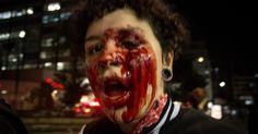 Ouvidoria vai pedir para MP apurar ação da PM que feriu manifestante