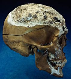 Written in Bone - A Modern Forensic File