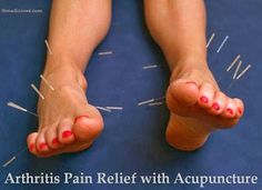 Arthritis Pain Relief with Acupuncture.