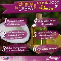 ¡Que fastidiosa y desagradable es la CASPA! Por eso, te damos este súper TRUCO para eliminarla. #girls #hair #instagood