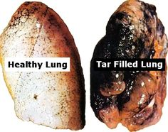 Stop! No more smoking!!