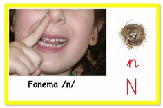 Apraxia, Oral Motor, Special Needs, Speech Therapy, Signs, Exercise, Irene, Aba, Montessori