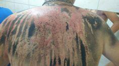 Sete calouros de agronomia da Faculdade da Amazônia (Fama), em Vilhena, Rondônia, tiveram queimaduras graves pelo corpo após um trote violento na noite desta segunda-feira, dia 15. As lesões foram provocadas por uma mistura de creolina e larvicida.