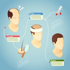 Buy Hair Transplantation Vector Illustration by macrovector on GraphicRiver. Hair transplantation isometric vector illustration with description surgery procedure of restore hair on bald head Natural Hair Care, Natural Hair Styles, Natural Makeup, Best Hair Transplant, Hair System, Hair Falling Out, Hair Starting, Hair Dye Colors, Skin Care