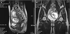 Image result for aortocaval compression syndrome in pregnant women mri  images