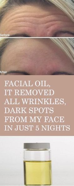 Facial Oil for remove Wrinkles, Dark spots IN JUST 5 NIGHTS