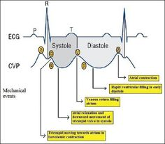 my favorite tutoring sessions!! - CVP waveforms with corresponding cardiac events and ECG