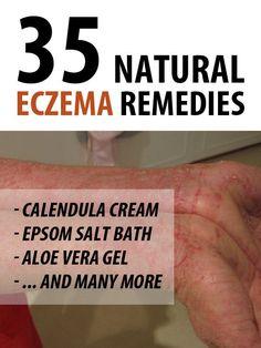 slăbește eczema top 5 moduri de a pierde în greutate în mod natural