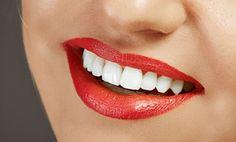 Groupon - Higiene bucal completa por 19 € y con limpieza profunda de encías por 99 € en Alcaladent. Precio de la oferta Groupon: 19€