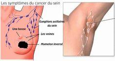 Prévenir le cancer du sein à l'aide de ce remède naturel qui aide à détoxifier les aisselles