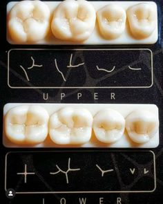 Dental Assistant Study, Dental Hygiene Student, Dental Humor, Medical Dental, Dental Life, Dental Health, Dental Videos, Dentist Clinic, Dental Photography