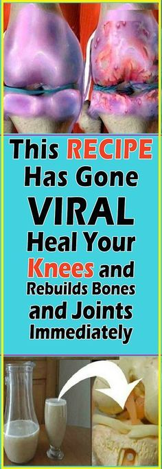 It is extensively known and accepted as a truth that the joint cannot heal once arthritis, joint collapse or bones on bone has been diagnosed in the knee.