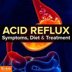 Acid reflux symptoms, diet & treatment  http://www.draxe.com #health #holistic #natural