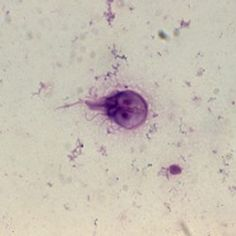 Giardia is an intestinal parasite that can affect dogs, cats and people. Treatment by your veterinarian is necessary if your dog is diagnosed with giardiasis. Worms In Dogs, Intestinal Parasites, Animal Medicine, Dog Hotel, Vet Med, Animal Science, Medical Laboratory, Veterinary Medicine, Science