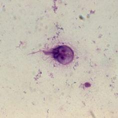 el giardia lamblia es un tipo de ameba