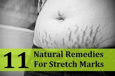 Stretch mark