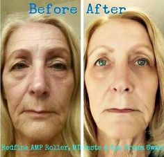 Image result for redefine amp md before and after