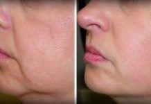 Dajte zbohom vráskam a ovisnutej koži na tvári – potrebujete len dve ingrediencie