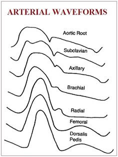 Cardiac Anesthesiologist: TYPES OF THE ARTERIAL WAVEFORMS