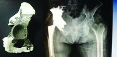 Chinese Doctors 3D Print a Titanium Pelvic Prosthesis for Cancer Survivor Afflicted with Bone Metastases [3D Printing News: http://futuristicnews.com/tag/3d-printing/ 3D Printing Books: http://futuristicshop.com/category/3d-printing-books/ 3D Printers: http://futuristicshop.com/category/3d-printers/]
