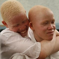 Are Albino White People | Tanzania: United Nations condemns killings of Albinos / Africa News