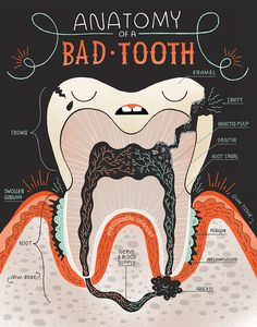 Inside a bad tooth by Rachel Ignotofsky www.rachelignotofskydesign.com