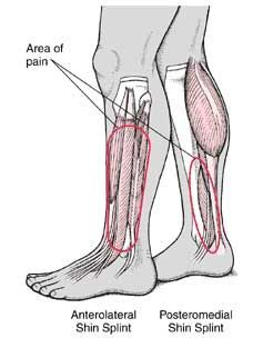 Shin splint is known as a tibia pain (shinbone). This disease, Shin splints are very common in dancers, runners as well as military staffs..... http://www.natural-health-news.com/shin-splint-symptoms-causes-diagnosis-and-treatment