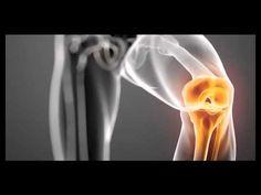 Solutia naturala impotriva artrozei recomandata de medicii specialisti! - YouTube