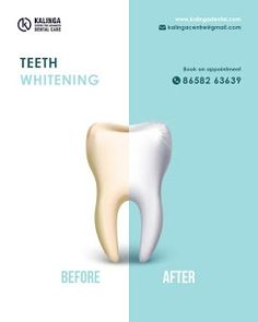 Teeth Whitening at Affordable Cost in Bhubaneswar, If you are looking for whiter teeth, then don't wait, schedule an appointment with us now and in case if you have any queries, feel free to discuss with us. Dentist Near Me, White Teeth, Teeth Whitening, Appointments, Schedule, Dental, Personal Care, Free, Tooth Bleaching
