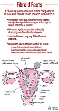 By age 45, about 7 out of 10 women develop fibroids of the uterus. Learn more about fibroids in the Merck Manual.