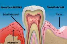 La Piorrea es provocada por la placa bacteriana que se forma sobre los dientes y que produce muchas toxinas irritando las encías, las que se retraen y sangran con facilidad. Los tratamientos naturales son una buena opción para combatir la piorrea sumado a un cepillado regular y profundo de todos los dientes. SIGUE LEYENDO EN: http://alimentosparacurar.com/remedios-caseros/n/1764/tratamientos-naturales-para-la-piorrea.html