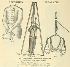 Deformity apparatus.