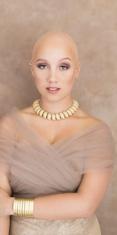 Meet The Inspiring Woman Embracing Her Alopecia, Even On Her Wedding Day