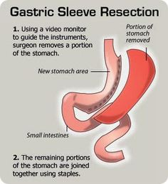 Gastric resection: Removal of the lower half of the stomach