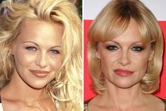 25 Most Expensive Celebrity Plastic Surgeries...Pamela Anderson....$10,500