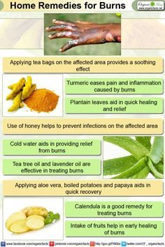 Home Remedies for Burns Home remedies for burns include usage of cold water… Blackhead Remedies, Herbal Remedies, Health Remedies, Natural Remedies, Types Of Burns, Home Remedies For Burns, Home Teeth Whitening Kit, Inflammation Causes, Organic Recipes