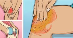 Watch This Video Proven Homemade Remedies for Arthritis and Joint Pain Ideas. Staggering Homemade Remedies for Arthritis and Joint Pain Ideas. Home Remedies For Arthritis, Natural Headache Remedies, Headache Relief, Pain Relief, Rheumatoid Arthritis Causes, Fibromyalgia Pain, Prevent Diabetes, Diabetes Remedies, Health Remedies