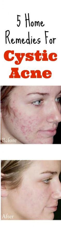 Use these 5 home remedies for cystic acne on a regular basis and you'll soon start to notice a BIG difference. All natural and it works!