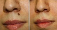 How to Get Rid of Moles Naturally