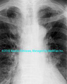 10. 間質性肺炎 症例095:放射線肺障害 3ヵ月前の胸部単純X線写真,『コンパクトX線アトラスBasic 胸部単純X線写真アトラス vol.1 肺』 Radiology